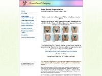 Asian Breast Augmentation By Dr. Corbin