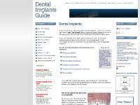 dental-implants-guide.com Dental implants , implant procedure, surgery